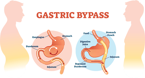 gastric bypass surgery san diego chart