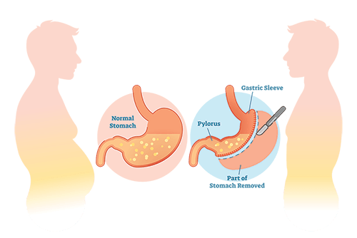 medical weight loss programs include gastric sleeve surgery
