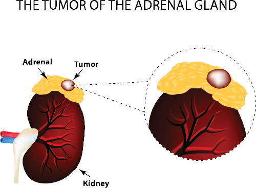 removing the tumor involves adrenal gland removal