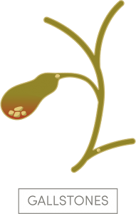gallstones are a sign you need Gallbladder Removal Surgery