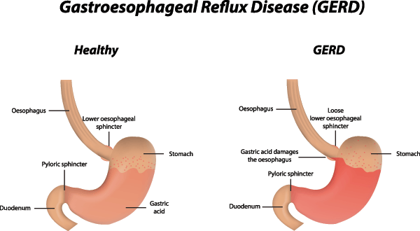 GERD Surgery for Gastroesophageal Reflux Disease