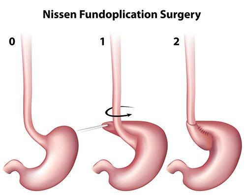 Nissen Fundoplication Surgery for GERD Surgery