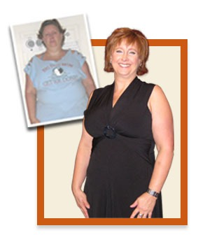 bariatric surgery - san diego patient