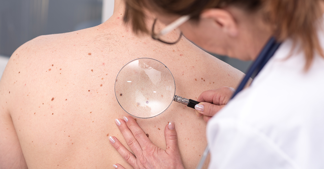 Important Things to Know About Melanoma Skin Cancer