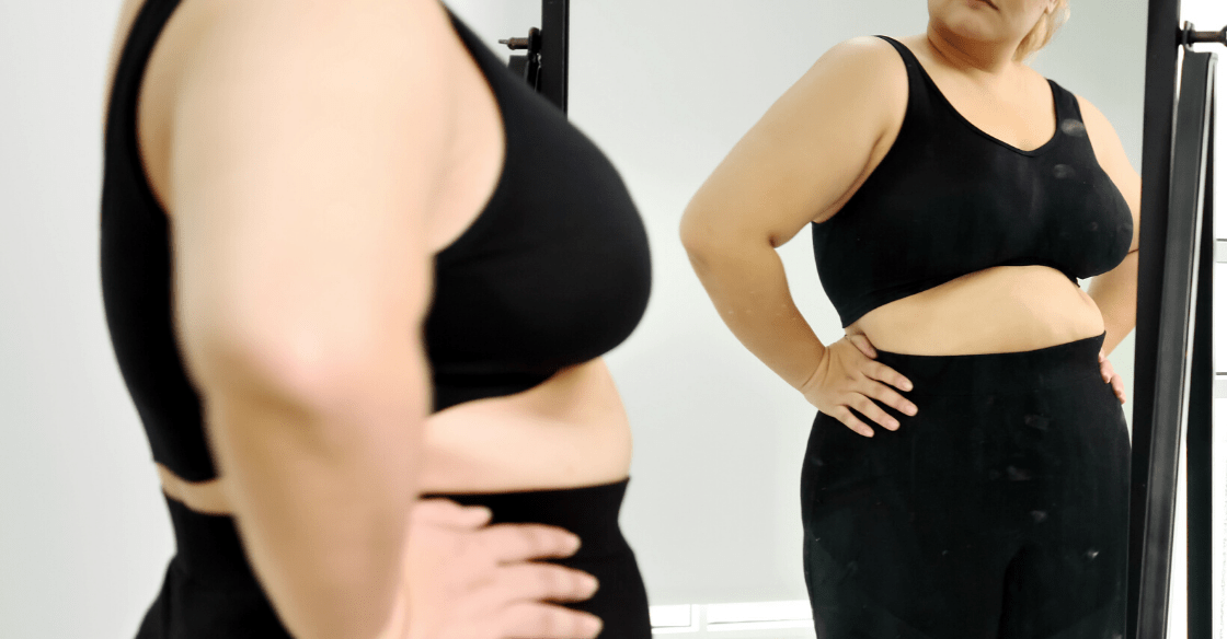 How to Manage Loose Skin After Weight Loss Surgery